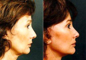 Facelift Before & After By Doctor Richard Galitz, MD, FACS, Miami Facial Plastic Surgeon