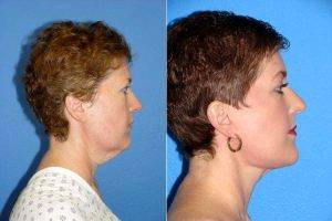 Facelift Before & After With Doctor Joshua Halpern, MD, PA, Tampa Plastic Surgeon