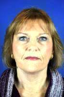 Facelift Before And After Picture Results With Dr Dean G. Davis