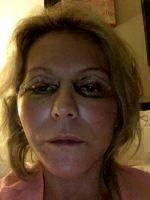 Facelift Cost Is Likely An Important Factor