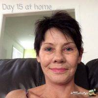 Facelift Day 15