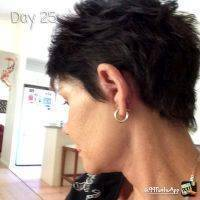 Facelift Day 25