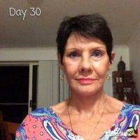 Facelift Day 30