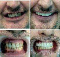 Facelift Dentistry Tampa