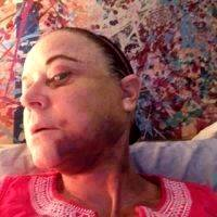 Facelift Hematoma On Chin And Neck (1)