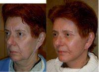 Facelift In Operating Room Before And After