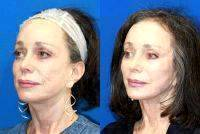 Facelift In United States Before And After