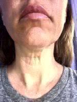 Facelift Surgery Rejuvenates Your Appearance