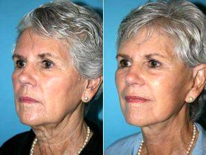 Facelift With Dr. Jeffrey M. Darrow, MD, Boston Plastic Surgeon