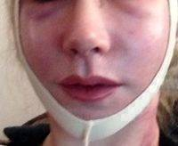 Facelift Without General Anesthesia Or Intravenous Sedation