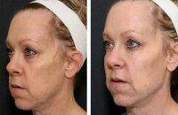 Filler For Face Before And After Photo