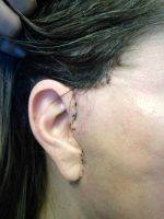 French Lift Facelift Scar