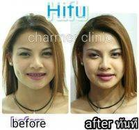 HIFU Before And After (6)