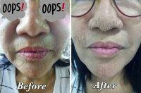 HIFU Before And After (7)