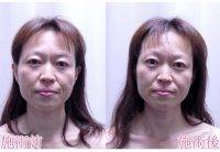 HIFU Before And After Photos (2)