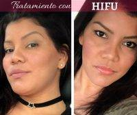 HIFU Before And After Pics (3)