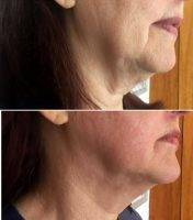 HIFU Facelift Before And After (1)