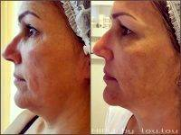 HIFU Facelift Before And After (6)