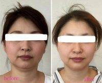 HIFU Facelift Treatment Before And After (2)