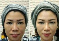 HIFU Facelift Treatment Before And After (3)