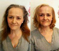 HIFU Facelift Treatment Before And After (6)