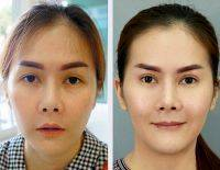 HIFU Facelift Treatment Before And After (7)