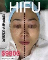 HIFU Facial Before And After (1)