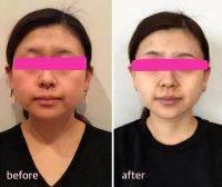 HIFU Facial Before And After (10)