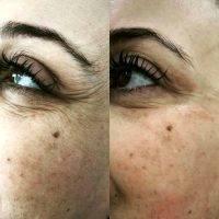 HIFU Facial Before And After (2)