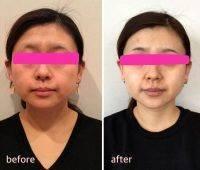 HIFU Facial Before And After (3)