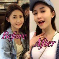 HIFU Facial Before And After (4)