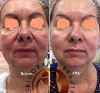 HIFU Facial Before And After (7)