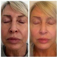 HIFU Facial Before And After (8)