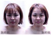 HIFU Facial Treatment Before And After (10)