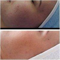HIFU Facial Treatment Before And After (3)
