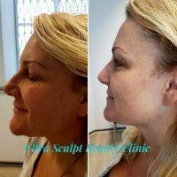 HIFU Facial Treatment Before And After (4)