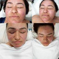 HIFU Facial Treatment Before And After (6)