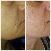 HIFU Facial Treatment Before And After (7)