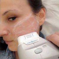 HIFU Facial Treatment Before And After (8)