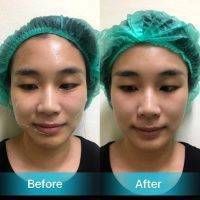 HIFU For Face Before And After (10)