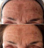 HIFU For Face Before And After (12)
