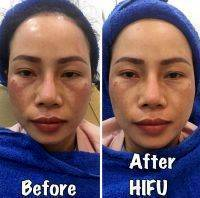 HIFU For Face Before And After (5)