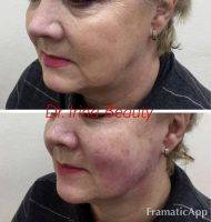 HIFU For Face Before And After (6)