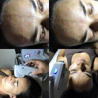 HIFU For Face Before And After (8)