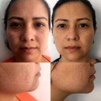 HIFU For Face Before And After (9)