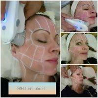 HIFU Non-Surgical Face Lift