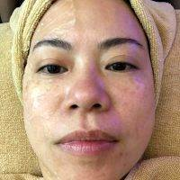 HIFU Non-Surgical Face Lift Before And After (1)