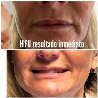 HIFU Non-Surgical Face Lift Before And After (4)