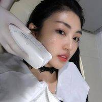HIFU Non-Surgical Face Lift Before And After (6)