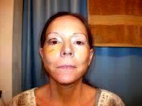 Hematoma After Rhytidectomy (3)